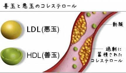 HDL20Cholesterol