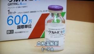 TPP1060137_R