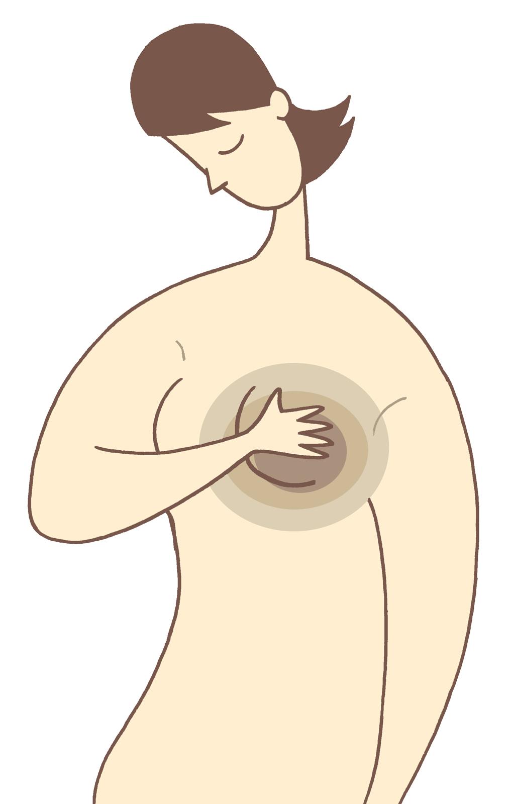 小林麻央の乳がん