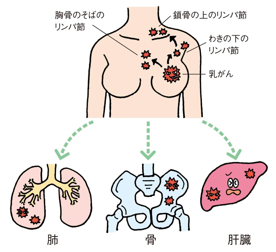 がんのステージ