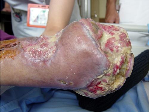 糖尿病で壊死・壊疽が両足に・切断避けたい