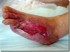 糖尿病で壊死・壊疽が両足に