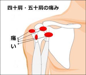 五十肩の痛みを簡単に治したい