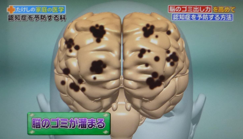 たけしの家庭の医学!認知症の予防